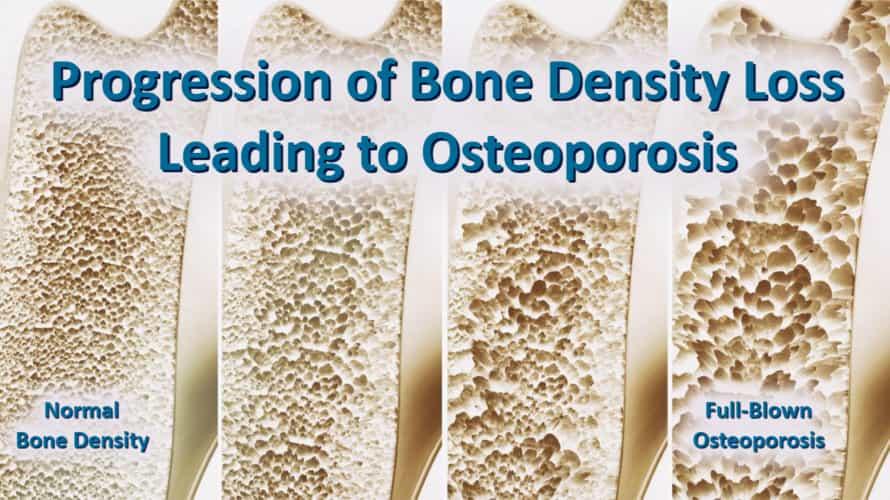 Osteoporosis Progression